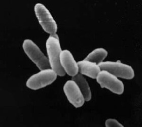 Image of a Halobacterium, one of the possible forms of life present on Europa. On the Earth it can be found in places with a very high concentration of salt, such as the Dead Sea or the Great Salt Lake in Utah.